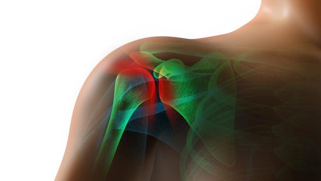 한림대 남성 심장, 회전근 개 수술 후 통증 조절 새로운 치료법 제시